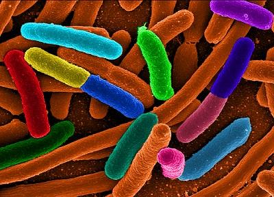 유전자 '다이어트'한 합성대장균으로 더 많은 단백질 생산한다