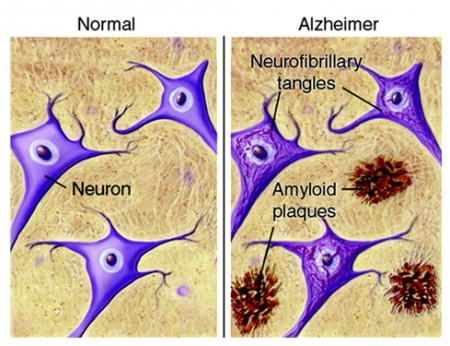 [그림1] 알츠하이머 환자의 뇌조직(오른쪽)에는 정상인(왼쪽)과 달리, 신경섬유농축체와 아밀로이드반이 침착되어 있는 것을 알 수 있다. - 경희대학교병원 제공