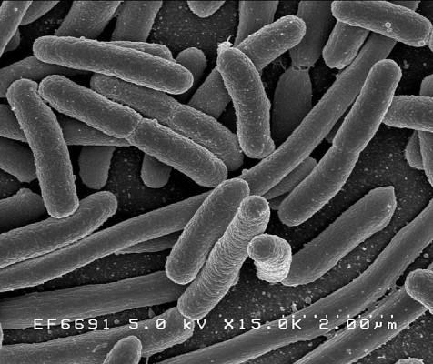 위독한 신생아에 박테리아가 특효약?
