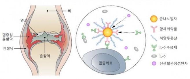 포스텍 연구팀이 개발한 관절염 치료제의 개념도. - 포스텍 제공