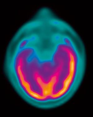 뇌전증 발작이 일어났을 때 활성화된 뇌의 부위(오렌지색)를 나타낸 이미지. - 장페랭센터, ISM/SPL 제공