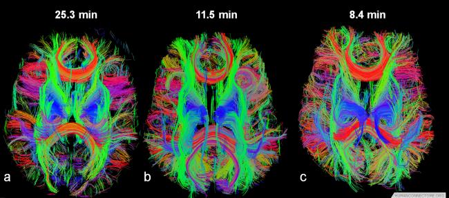 인간 뇌의 초음파 평면 이미지(EPI: Echo-Planar Imaging) 사진. 미국 국립보건원(NIH)의 지원으로 뇌의 기능적, 해부학적 네트워크를 연구하고 있다. 이 연구에는 워싱턴, 미네소타, 옥스포드, 세인트루이스, 인디애나 등 주요 대학교들이 참여하고 있다. - HumanConnectome.org 제공