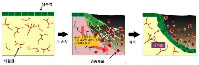 김규원 교수 연구팀이 밝혀낸 뇌수막 회복 원리. 손상된 부위에 산소 공급이 줄어들면서 뇌수막 세포가 이동한다. - 네이처 커뮤니케이션스 제공