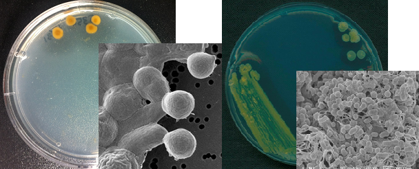 해양과학기술원 연구진이 남태평양에서 발견한 신종 미생물 알지버가 패시피카(Algivirga pacifica)와 오츠로버가 패시피카(Ochrovirga pacifica). - 해양과학기술원(KOIST) 제공 제공