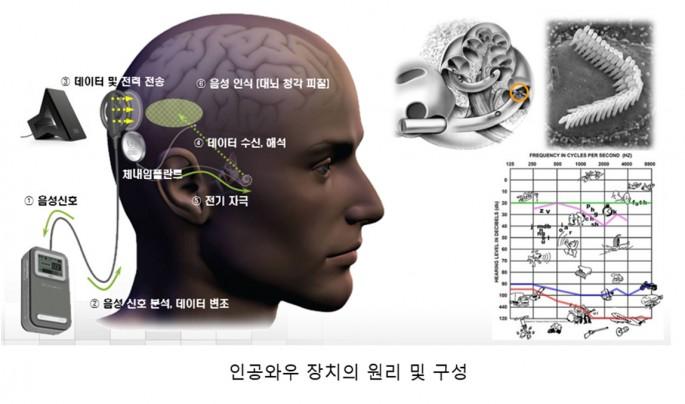 인공와우 시스템의 원리 - 서울대 제공