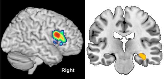 난독증에 관여하는 뇌 부위는 전두엽 하이랑(붉은색)으로 이 부위가 활성화될수록 난독증을 치료하기 쉬운 것으로 나타났다(왼쪽). 수학 실력은 기억과 학습 능력을 관장하는 해마의 회질(노란색) 용적과 관련이 있다. 실험 결과 회질이 클수록 수학 실력이 더 많이 향상됐다(오른쪽).  - 뉴런 제공