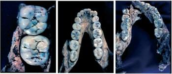치아를 통한 연령대의 분류. 맨왼쪽 사진은 제3대구치가 아직 나오지 않은 미성년, 가운데 사진은 제3대구치(맨 아래 치아)가 나온 청년, 오른쪽 사진은 제3대구치가 2배 이상 닳은 노년이다. 세 화석 모두 남아프리카의 유적지 스와트크란스에서 발견된 오스트랄로피테쿠스(파란트로푸스)다. - 밀포드 월포프 제공