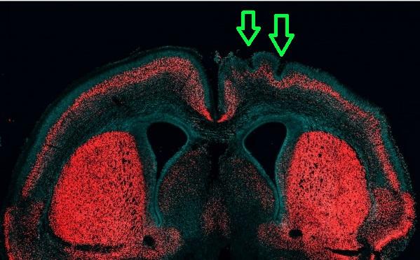 인간의 신피질을 크게 만드는 데 관여하는 것으로 알려진 유전자를 쥐에게 집어넣자, 유전자를 집어넣은 오른쪽 뇌가 왼쪽 뇌에 비해 커졌다. 주름(화살표 부분)이 생기기도 했다. - 막스플랑크 연구소 제공
