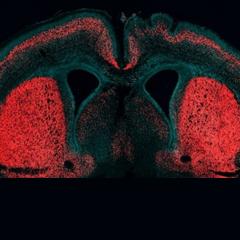 유인원에서 인간으로 진화시킨 '뇌확장 유전자' 찾았다