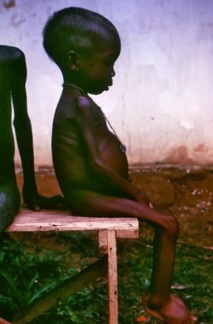 콰시오커 병에 걸린 나이지리아 소녀의 모습. - CDC 제공