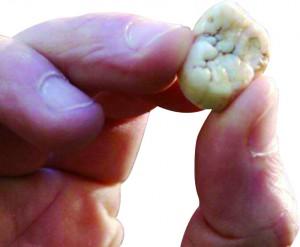기간토피테쿠스의 어금니 화석. 남자 어른의 엄지손가락과 비교해 보면 얼마나 큰지 짐작할 수 있다. - 위키미디어 제공
