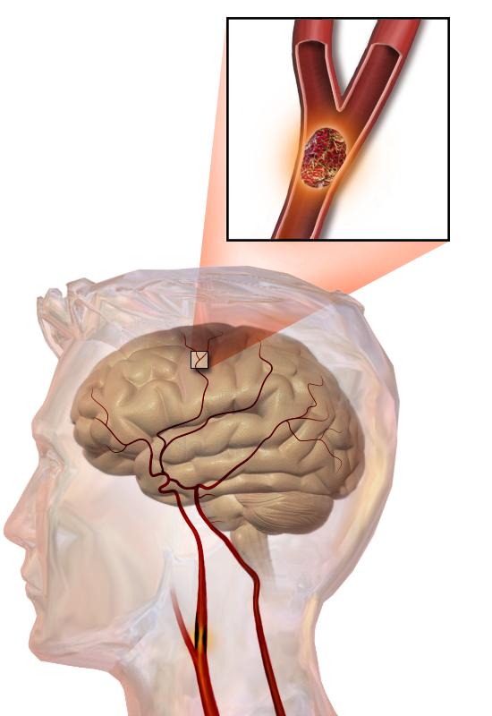 뇌졸중은 뇌 혈관이 막히면서 발생한다. - Blausen Medical Communications 제공