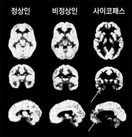 정상인과 비정상인, 사이코패스의 뇌를 양전자단층촬영(PET)한 사진. 사이코패스의 뇌는 사회적 행동, 도덕성에 관여하는 안와피질(화살표)이 어둡게 나타난다. 이것은 해당 부위가 제대로 활성화되지 않아 제 역할을 하지 못함을 뜻한다. - 더퀘스트 제공