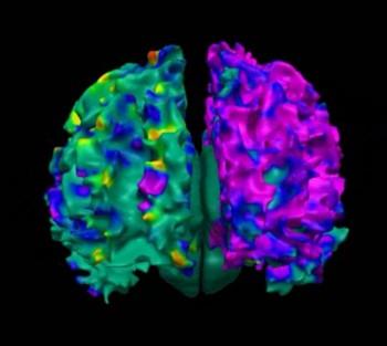 연구팀이 찍은 아동의 뇌 MRI사진. PAH에 노출된 산모의 아이는 자뇌 백색질의 표면 넓이가 현저히 감소한다. - LA아동병원 사반연구소 제공