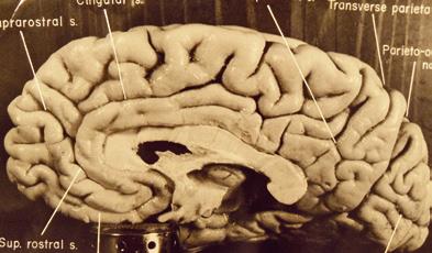 실제 아인슈타인의 뇌. - 어린이과학동아 제공
