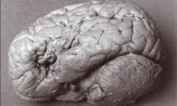 브로카 영역이 손상된 환자의 뇌. - 어린이과학동아 제공