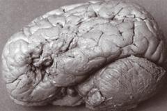 아인슈타인도 깜짝 놀란 뇌 연구소