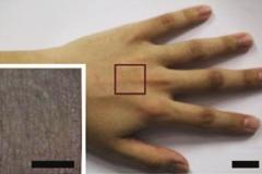 피부에 붙여 실시간 진단하는 '무선 스마트 센서'