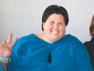[내 생애 최고의 의술]뉴질랜드 220kg 비만환자 위절제술 성공… 80kg대 제2인생