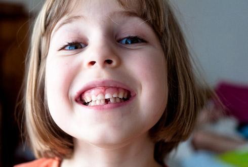 음식 속 아미노산이 치아 건강 지킨다