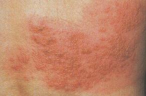 대상포진, 한 번 발병하면 길게는 수년 극심한 난치성 통증에 시달려
