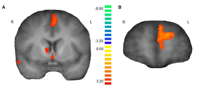과거 행복했던 일을 기억할 때, 뇌의 보상회로인 선조체(왼쪽 뇌 이미지 원 안)와 내측전전두엽피질(오른쪽 뇌 이미지)이 보다 활성화된다는 사실이 밝혀졌습니다. - 뉴런 제공