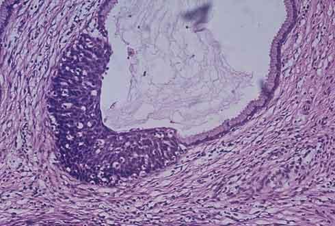 유전자 물질 이용한 암·치매 치료 원리 찾았다