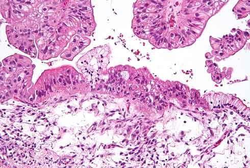 난소암 재발 환자, 면역세포치료제 임상시험 첫 시행