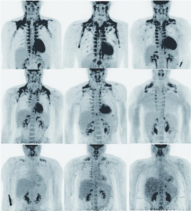 성인에게도 갈색지방이 / 네덜란드 마스트리히트대 연구팀이 PET-CT로 촬영한 결과다. 까맣게 보이는 부분이 활성화된 갈색지방 혹은 베이지색지방이다. 위의 두 사람은 정상 체중, 제일 아래 사람은 비만인 사람이다. 정상 체중인 사람이 상대적으로 갈색지방이 많지만, 갈색지방의 양과 체중이 어떤 관계가 있는지는 아직 밝혀지지 않았다. - Marken Lichtenbelt(The New England Journal of Medicine ) 제공