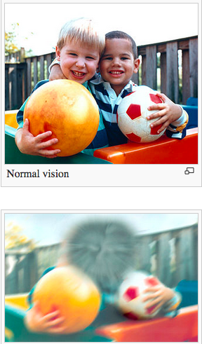 정상인 사람이 본 모습(위)과 황반변성이 있는 사람이 바라본 모습(아래). - 위키피디아 제공