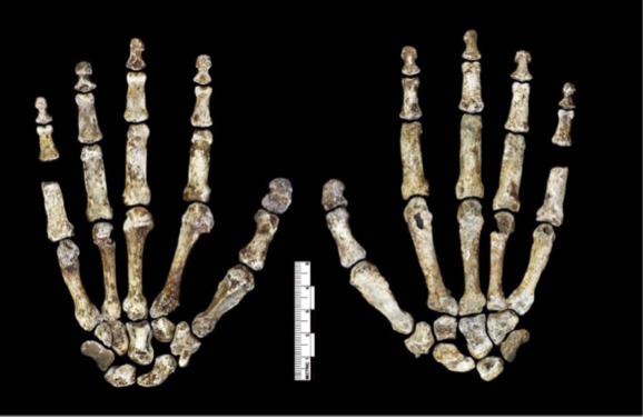 호모 날레디의 손뼈로 왼쪽은 손바닥 면, 오른쪽은 손등 면이다. 손뼈 27개 가운데 콩알뼈만 없다. 손가락의 비율이 현생인류와 가깝지만 약간 휘어져 있어 나무를 타는데 적합하다. 반면 손바닥과 엄지손가락은 현생인류처럼 도구를 다루는데 적합하다. - eLife 제공