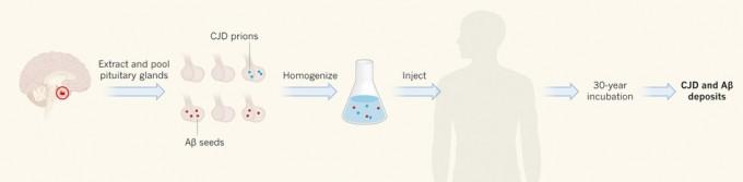 시체 유래 인간성장호르몬 투약의 비극. 1958년에서 1985년 사이 성장이 부진한 어린이 3만 여명이 시체의 뇌하수체에서 추출한 인간성장호르몬을 투여받았다. 변형 프리온 단백질이나 아밀로이드베타(Aβ) 단백질이 침착된 뇌하수체가 섞여 있는 로트의 약물을 받은 경우 수십 년이 지나 크로이츠펠트-야콥병이 발병하거나 Aβ가 침착된다. - 네이처 제공