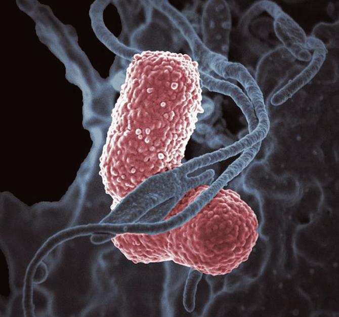 면역세포 중 하나인 '호중구(회색)'와, 슈퍼 박테리아인 '폐렴간균(분홍색)'이 붙어 있는 모습. - NIAID(F) 제공