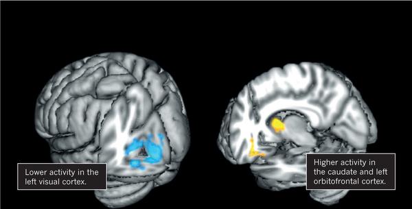 신체이형장애인 사람의 뇌 이미지로 시각정보를 처리할 때 활성패턴에 차이를 보인다. 즉 왼쪽후두엽의 시각피질의 활동도는 낮고(왼쪽 파란색) 미상핵과 왼쪽안와전두피질의 활동도는 높다(오른쪽 노란색).  - Jamie Feusner 제공