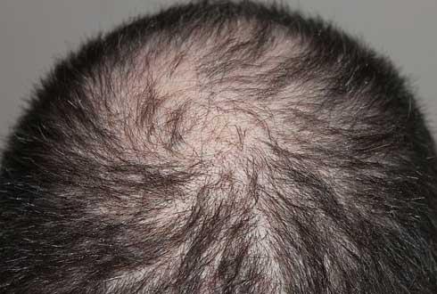3주 만에 머리 나는 탈모 치료제 나온다