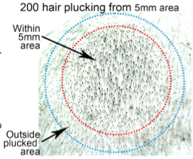 동물실험 결과 어느 빈도 이상으로 털을 뽑을 경우 그 영역에 복구신호가 작동하면서 그 이전에 털이 빠진 모낭에서도 털이 생기면서 주변보다 오히려 털이 더 빽빽해진다. - 셀 제공