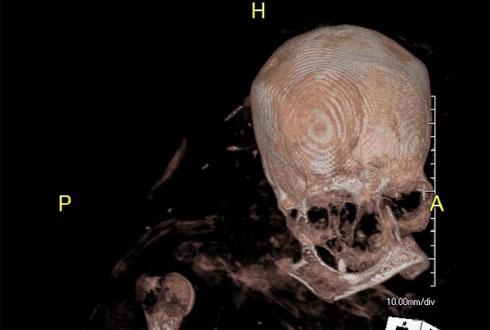 3200년 된 미라의 뇌 촬영돼