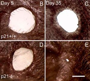 쥐의 귀에 뚫린 구멍 조직이 재생되는 과정. 제공 - 엘렌 히버 카츠 교수팀 제공