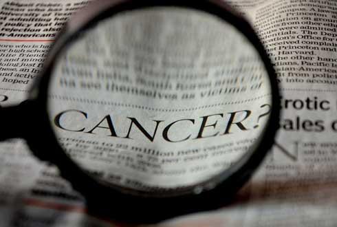 유방암 세포만 골라 '찰싹' 달라붙는 항암제 전달 물질 개발