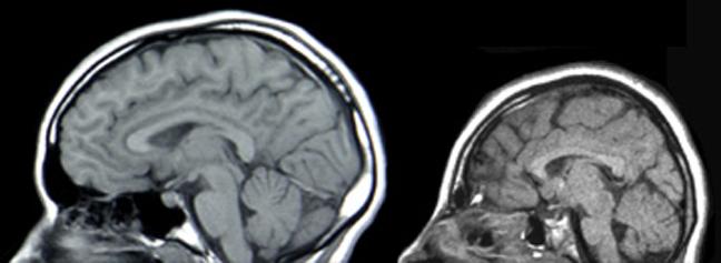 태아 뇌의 신경계 발달이 제대로 이뤄지지 않을 경우 소두증으로 이어질 수 있다. MRI 비교 사진은 유전적 결함(ASPM 유전자 돌연변이)으로 인한 소두증(오른쪽) 사례이지만, 지카바이러스 감염으로도 소두증이 유발될 수 있을 가능성이 매우 높다. - 위키피디아 제공
