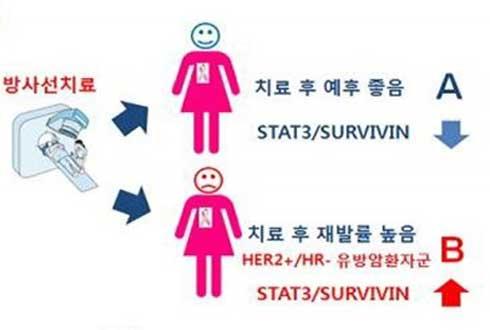 여성암 1위 유방암, 치료 후 재발 가능성 미리 확인