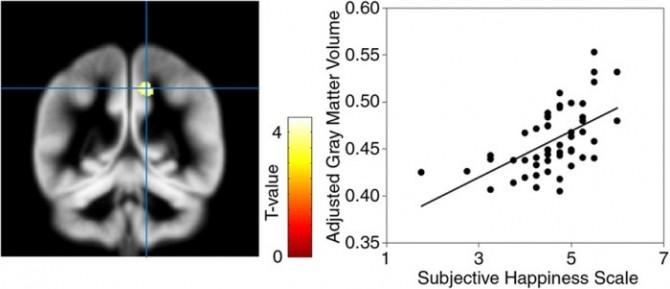 일본 연구진이 행복하다고 느끼는 사람일수록 뇌 설전부(왼쪽 노란색)의 부피가 크다는 사실을 알아냈다. - 사이언티픽 리포츠 제공
