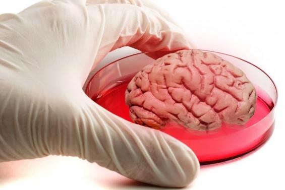 '미니 뇌' '미니 위' 등 초소형 인공장기로 질병 연구 새 길 열릴까