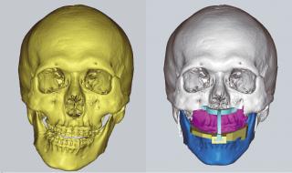 턱이 삐뚤어진 환자의 수술 전 얼굴 구조 3D 모델(왼쪽)과 환자 맞춤형 도구와 함께 수술 후 얼굴 구조를 시뮬레이션 해 본 모습(오른쪽). - 이상휘 연세대 치과대 구강악안면외과 교수 제공