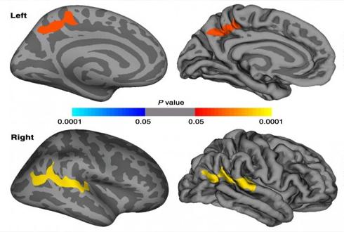 외상후스트레스장애(PTSD) 환자, 대뇌 피질 더 두껍다