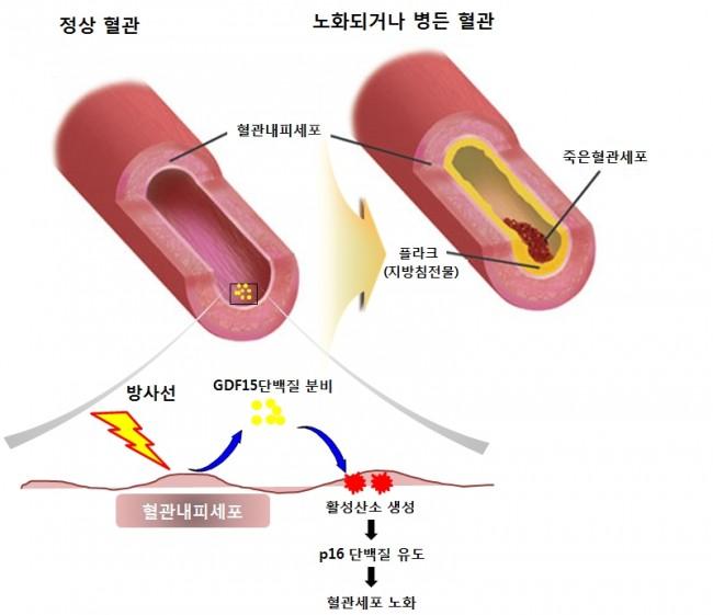 연구팀은 정상혈관이 방사선에 노출되면 혈관내부에 GDF15단백질(왼쪽 노란색)이 발현되며 세포의 노화를 촉진하고,노화된 세포엔 죽은 혈관세포나 지방찌꺼기들이 쌓이며 질병을 일으키게 된다는 메커니즘을 밝혔다. - 한국원자력의학원 제공