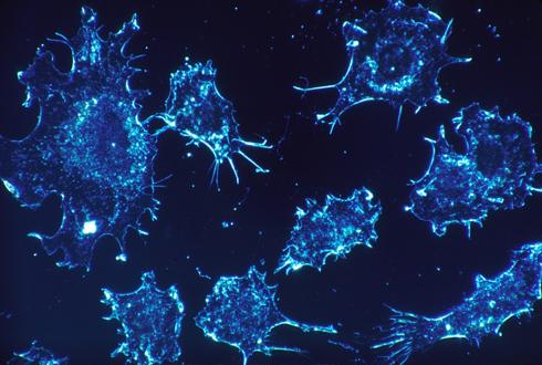 암세포 비정상적으로 성장시키는 '미싱 링크' 첫 발견