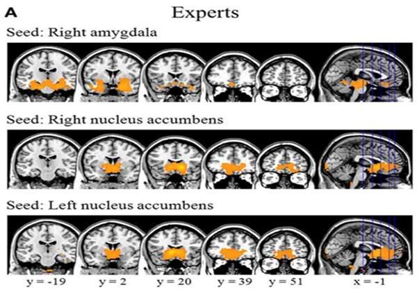바둑 전문가들의 뇌를 관찰해 보니, 우측 편도체(Amygdala), 측좌핵(Nucleus accumbens)과 안와전두엽 사이에서 기능적 연결성이 커졌음을 확인했습니다. 장기간 수련이 뇌의 기능을 향상시킨 결과죠. - 서울대학교병원 제공