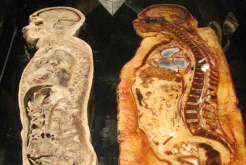 비만인과 일반인의 몸속 비교 '사진'
