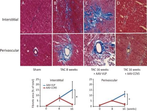심장 섬유화를 유발시킨 생쥐의 심장에 CCN5 유전자를 전달했을 때, 심장 섬유화가 회복되는 과정. 섬유화 유발 전 정상 심장(A)에 섬유화를 유발한 후(B), 16주가 지나자 대조군 생쥐의 심장(C)은 콜라겐(파란색) 축적이 심화된 반면 CCN5 유전자를 주입한 생쥐의 심장은 정상과 유사한 수준으로 회복됐다(D). - 광주과학기술원(GIST) 제공